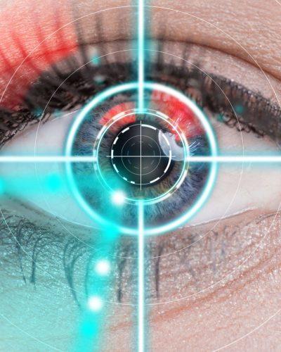 Opération de yeux au laser à Bruxelles