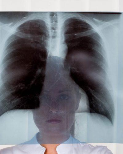Radiographie à Bruxelles